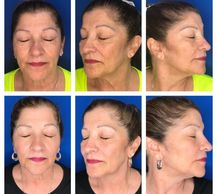 Tribella: IPL Skin Tightening Viva Frac Radio Frequency