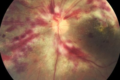 Retinitis due to herpes infection