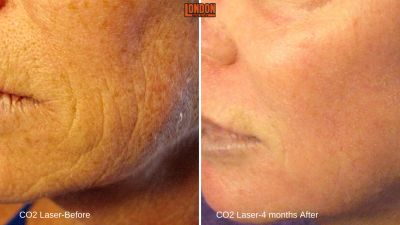 laser, age spots, wrinkles, lines, pigment, resurfacing, chemical peel, facial laser, anti-aging
