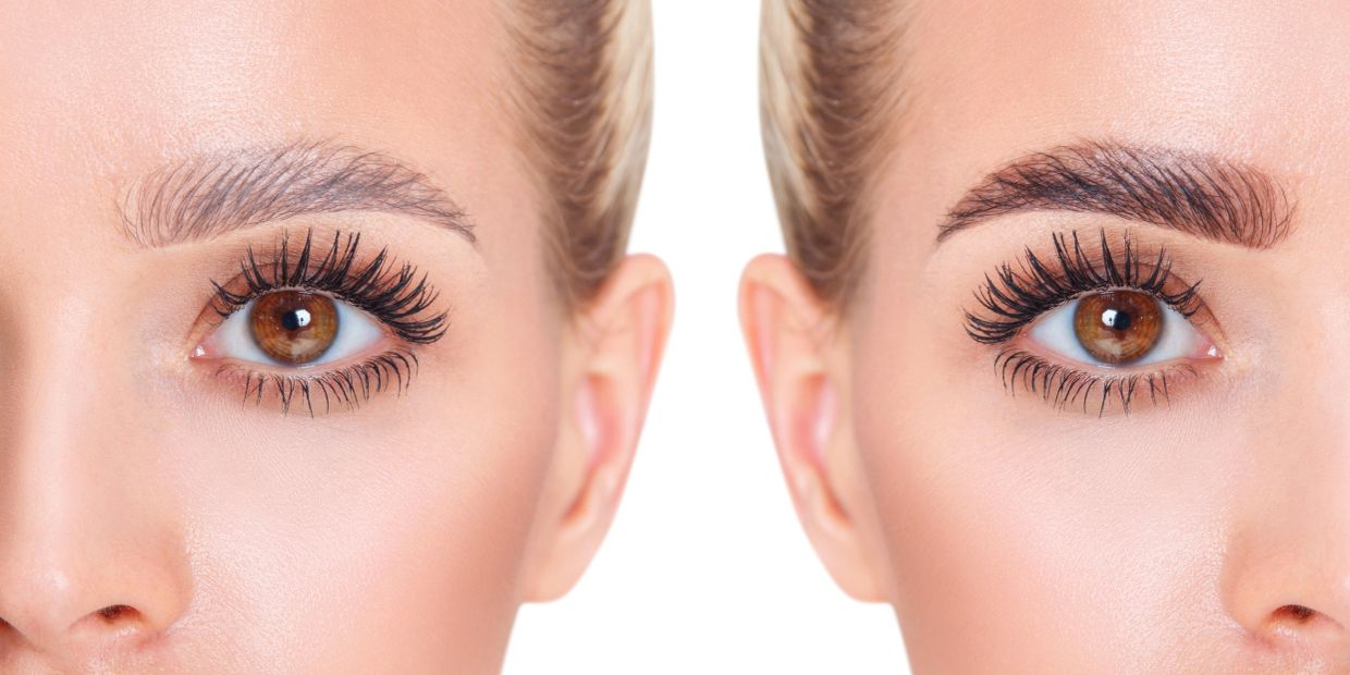 A young woman has a before and after photo following a Brow Lamination treatment.