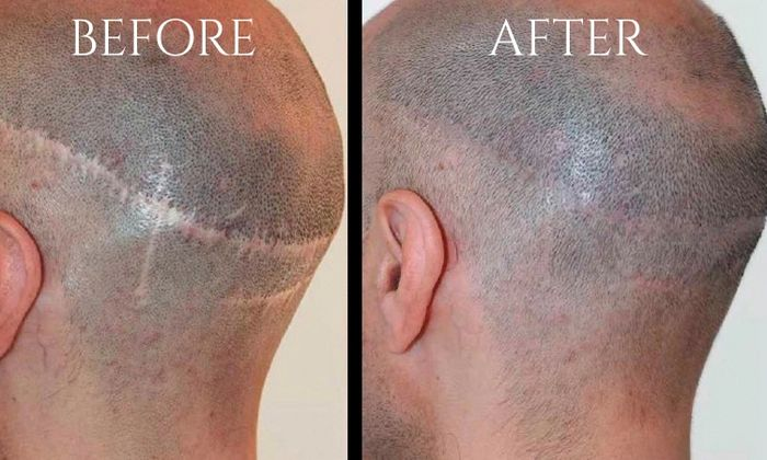 Scar Camouflage and Scalp Micro Pigmentation
