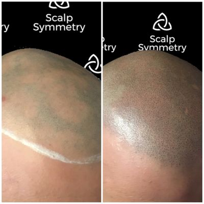 Alopecia Areata Totalis Scalp Micro Pigmentation in San Diego Scalp Micropigmentation