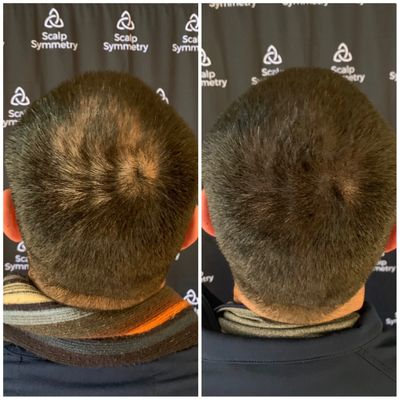 Scalp Micro Pigmentation in San Diego Scalp Micropigmentation
