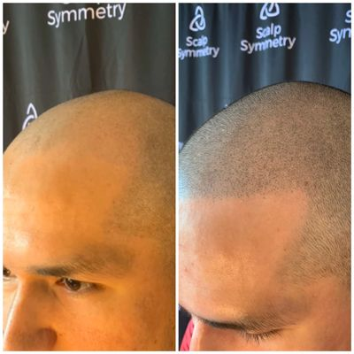 Scalp Micro Pigmentation in San Diego Scalp Micropigmentation SMP