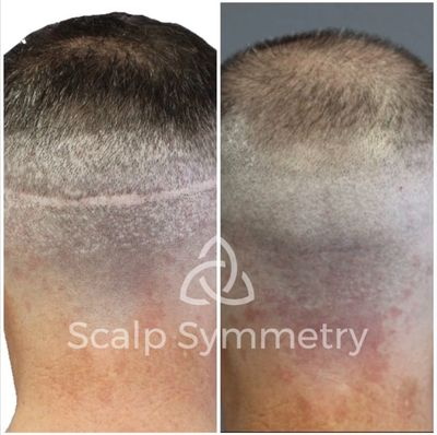 Scalp Micro Pigmentation in San Diego Scalp Micropigmentation Scar Camouflage