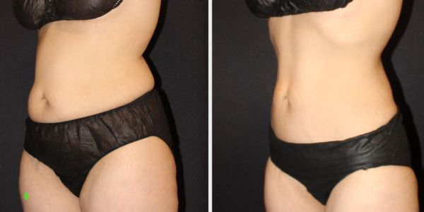 before after pics coolsculpting