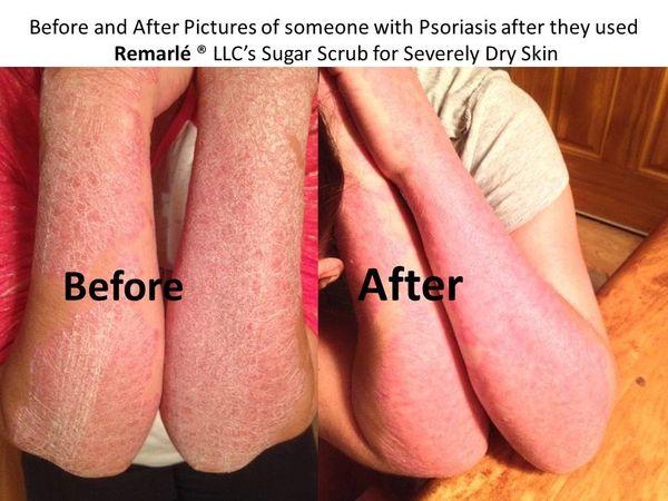 Sugar Scrub Severely Dry Skin Feet Psoriasis Eczema Hand Eczem Remarle Natural Skin Care