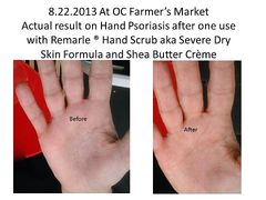 Severely Dry Cracked Hands, Feet, and Cuticles Rescue Kit