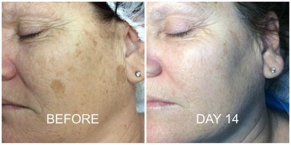 Removes age spots and dark spots from the face and body in usually one treatment.