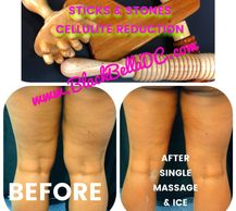 Restore collagen & reduce dimpling. We'll recommend a treatment plan for Stage 1, 2 or 3 Cellulite.