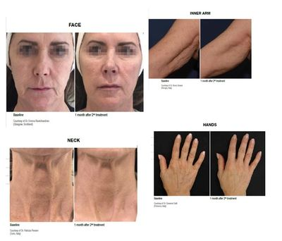 Profhilo injectable moisturiser for anti-wrinkle, smooth skin by Amy a private Wetherby dentist