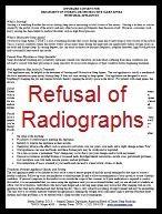 Informed Refusal for Radiographs