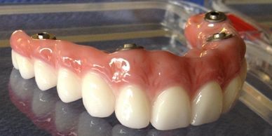 ALL ON 4 DENTURE