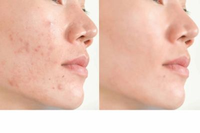 Acne Treatment - Before and After pictures
