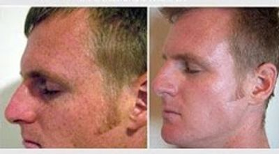 Sun Spots and Freckles treatment by IPL Photo Facial - Before and After Pictures