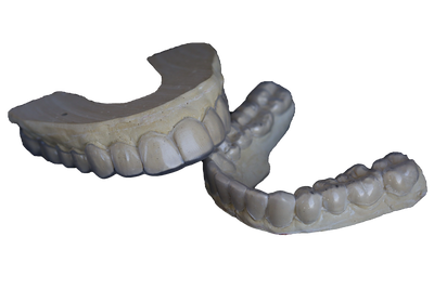 Picture of custom teeth whitening trays.