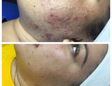 Before and after: acne treatment