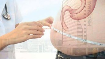 Common risks in every surgical procedure are also valid for Tube Stomach surgeries. A team of expert