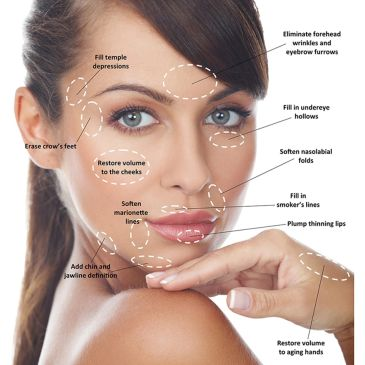 Dermal Filler Juvederm Allergan