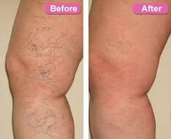 Spider Vein Reduction Single Session