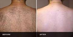 Laser Hair Reduction - Back Single Session