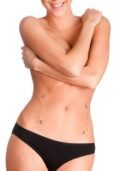 Consultation with evaluation by Surgeon, and Procedure Price for Smart Lipo BMI <30- 2 Large Areas