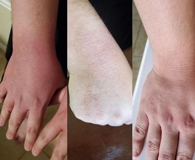 NoMo Eczema lotion result only in 3 days.