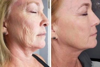 Full Face & Neck Lift and Tightening Treatment