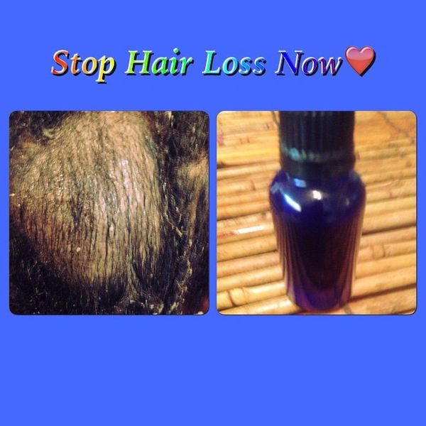 H2BN Ancient Stop Hair Loss Magic Solution Now On Sale