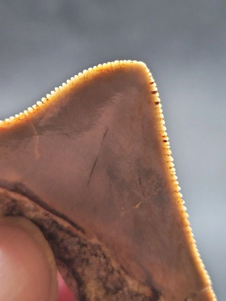 #2008 slightly pathological posterior Meg tooth