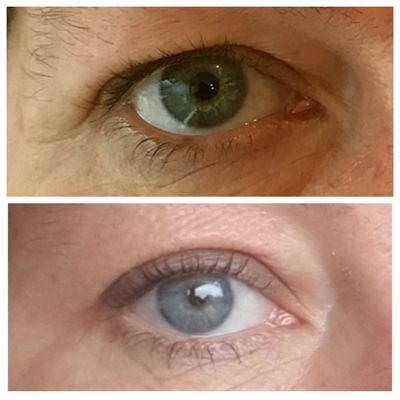 Plasma Eye Lift alternative to blepharoplasty