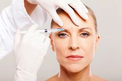 Appointment for Consultation and Administration of Botox 40 Units