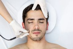 Men Microdermabrasion Facial Treatment