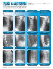 Spinal Decay Insert (MULTIBUY) (200 A4 Sheets)