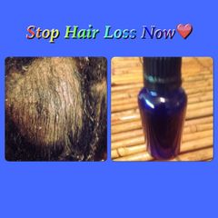 H2BN Ancient Stop Hair Loss Magic Potion Now On Sale