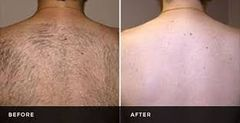 Laser Hair Reduction - Back Single Session