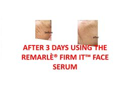 FIRM IT™ 100% Natural Skin Brightening Face Serum and Body Oil for Acne, Sagging Skin, Scars, Cellulite, and Wrinkles